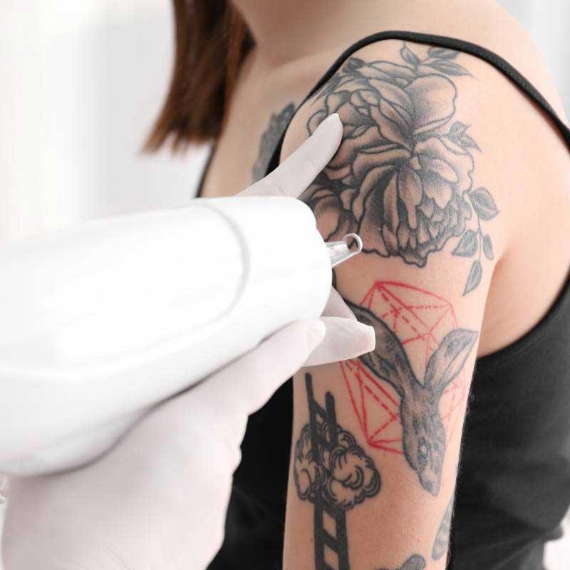 expert laser tattoo removal melbourne